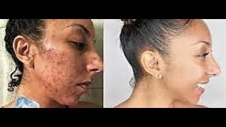 Skincare Results Acne Scar Removal  Before and After l Subscribe To Kimbella MD