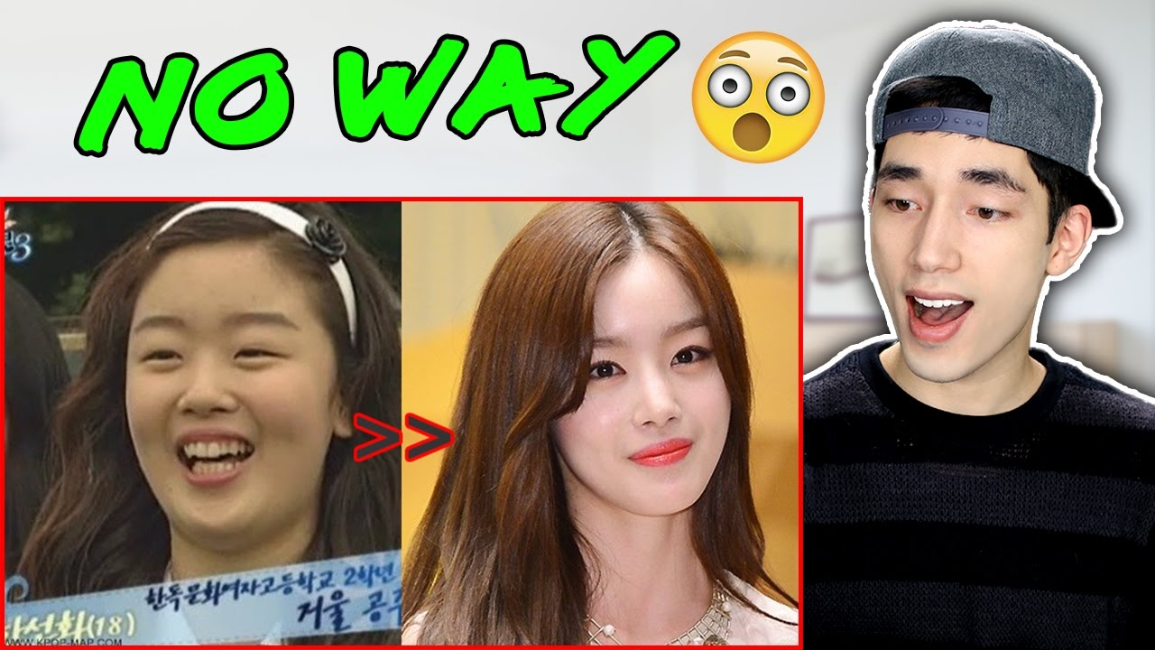 kpop stars plastic surgery before and after photos reaction