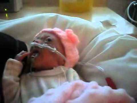 ophelia premature baby born 14 weeks early 576grams