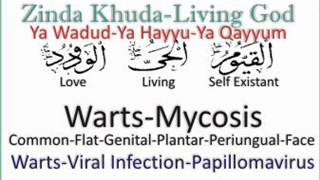 Warts - Mycosis say Shifa