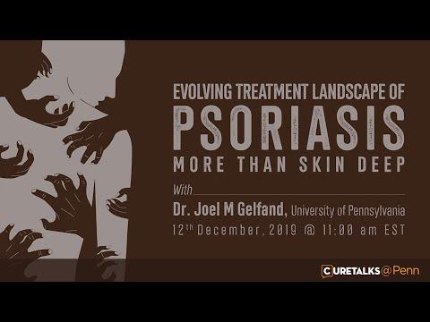 Eczema's Effects Greater Than Skin Deep
