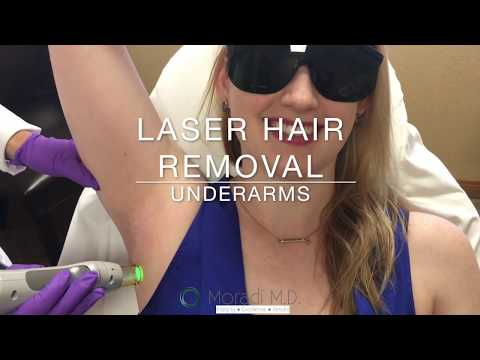 Laser Hair Removal Underarms at Moradi MD in San Diego California