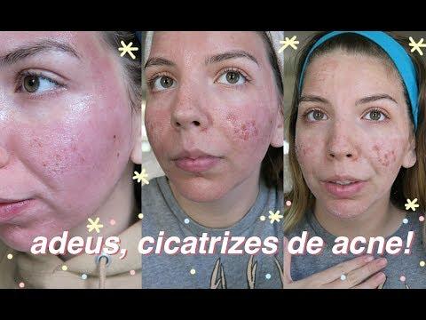 Para casa rosca comentários tratamento laser da em no rosto veias a