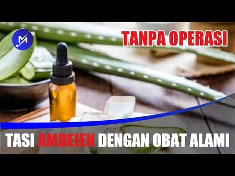 benar-ampuh!-cara-mengobati-penyakit-ambeien/wasir-alami-dengan-cepat-tanpa-operasi
