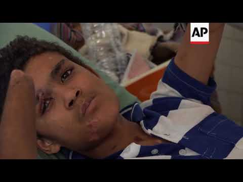 Closure of Yemen borders result in medical shortages