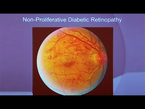 Eye Disease: An Avoidable Complication of Diabetes