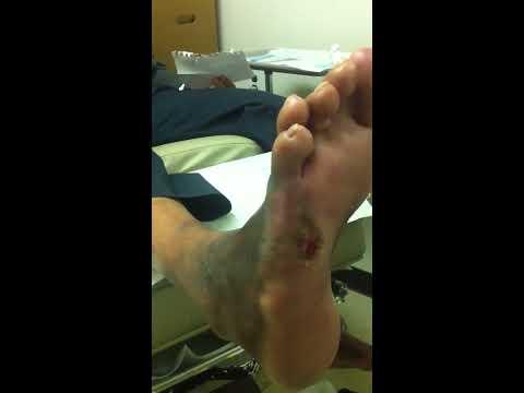 diabetic foot ulcer treatment
