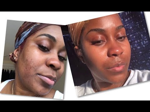 Miracle Skin Care Routine | This Sh*t Really Work 😱