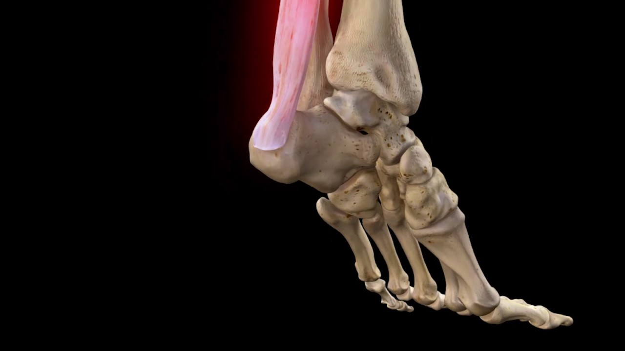 Achilles Tendon Rupture | Complete Anatomy - YouTube