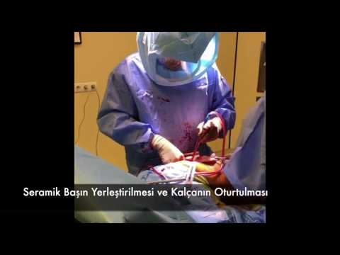 kalça protezi - Ortopedik Bilgi