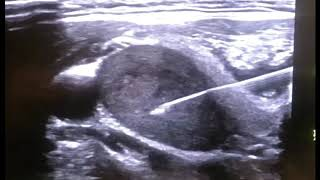 CytoCore Ultrasound Video: Thyroid