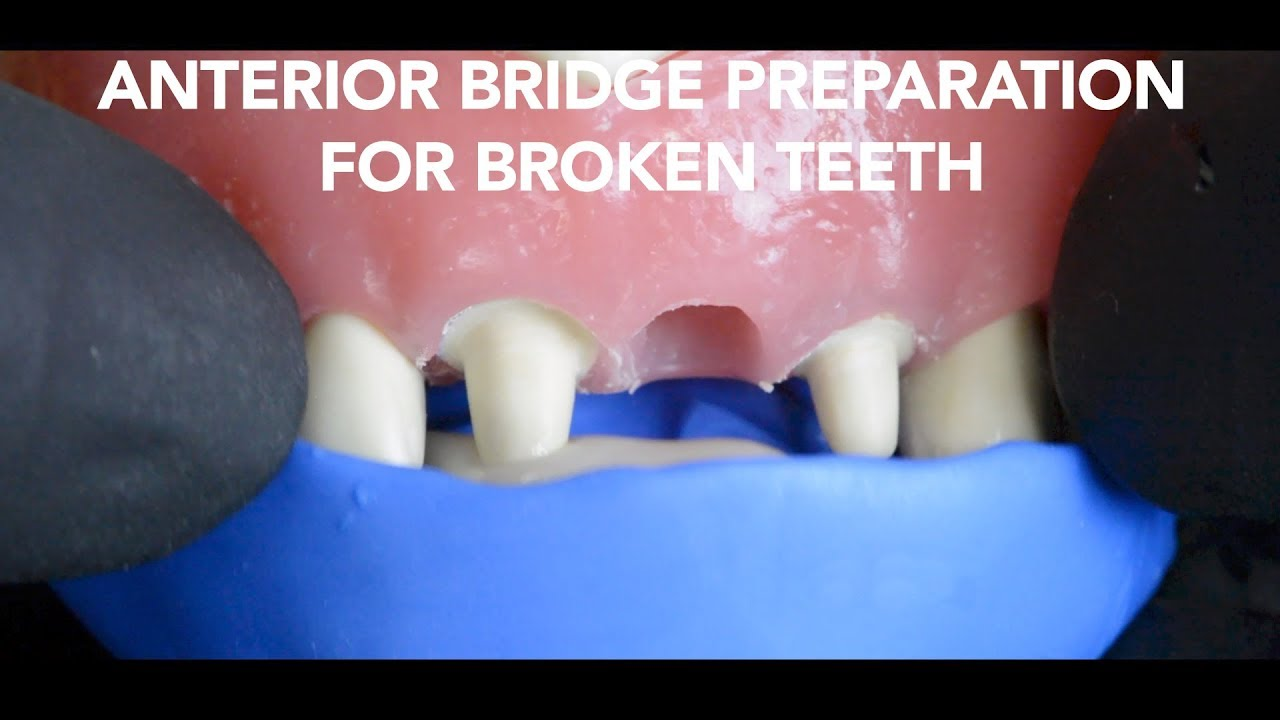 Dental Bridge Preparation After Tooth Extraction