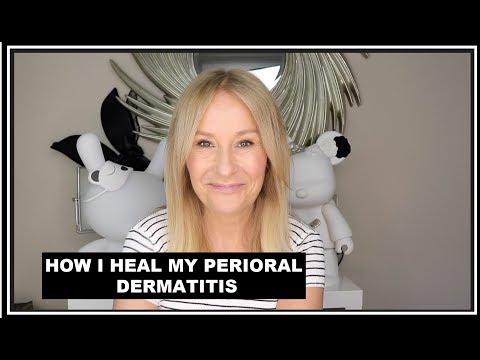 perioral-dermatitis---how-i-treat-my-skin-flare-ups