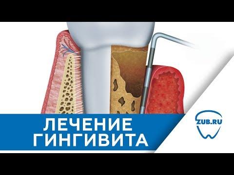 Лечение гингивита