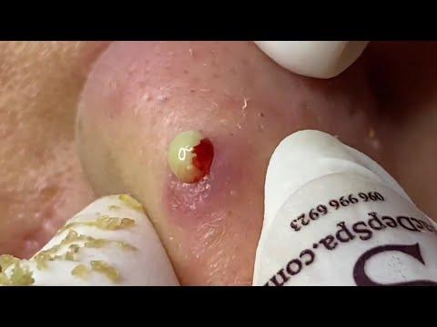 Treatment Of Acne Wrap Quickly | Điều Trị Mụn Nhanh Hiệu Quả -SacDepSpa#120