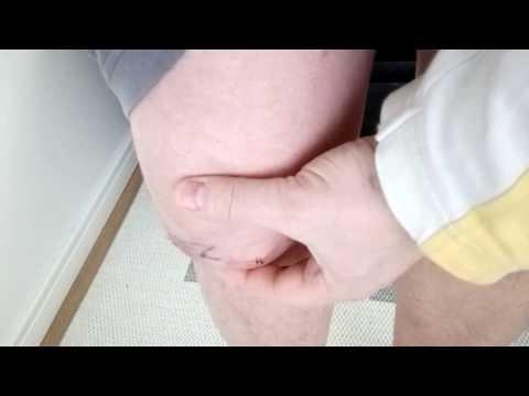 Видео операция на колленный сустав лечение суставов в санкт петербурге