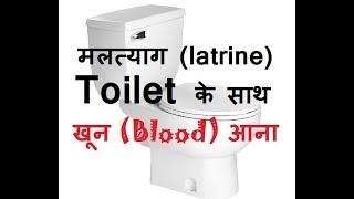 मलत्याग (latrine) potty करने के बाद या पहले खून (blood) आना – black brown blood in stool in Hindi