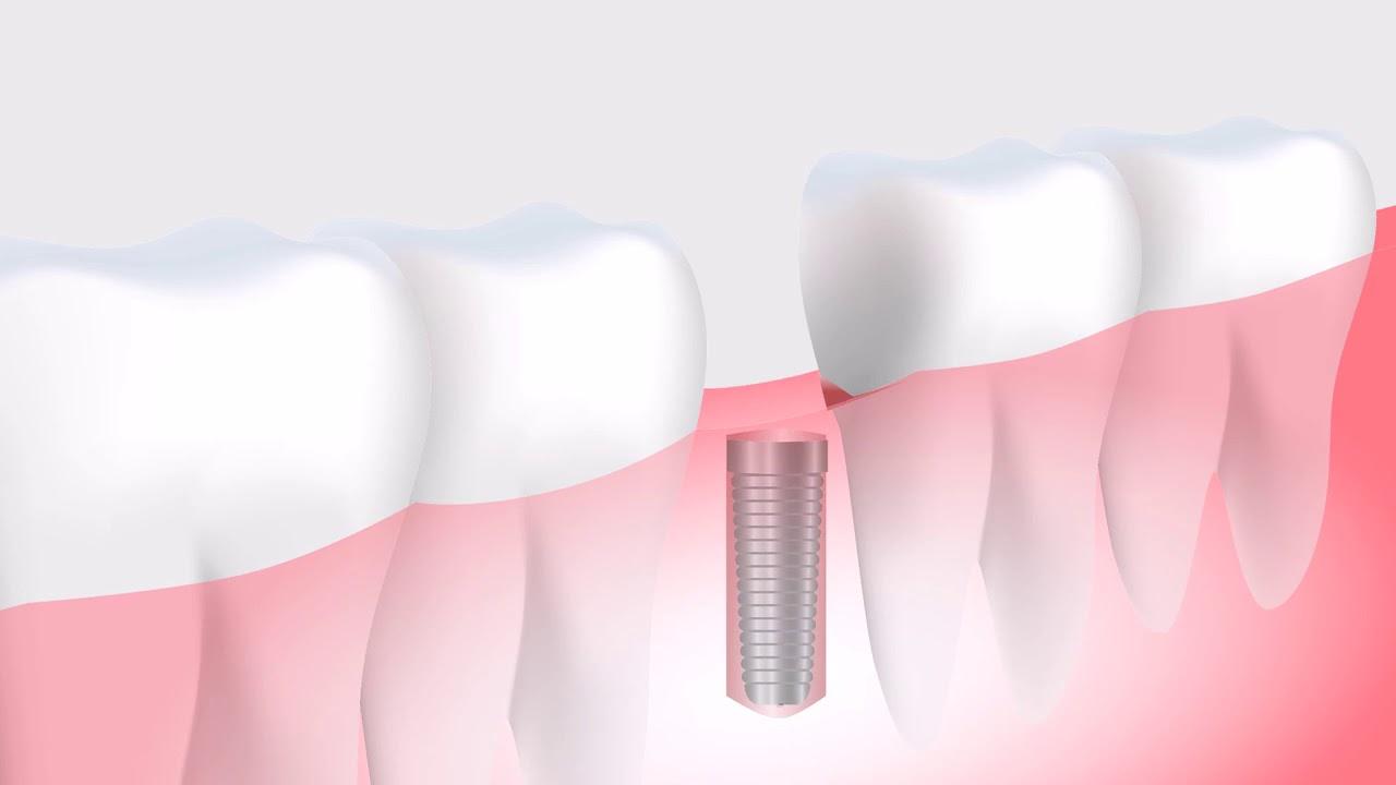 Dental Implants New Rochelle|Dental Implant Dentist Westchester