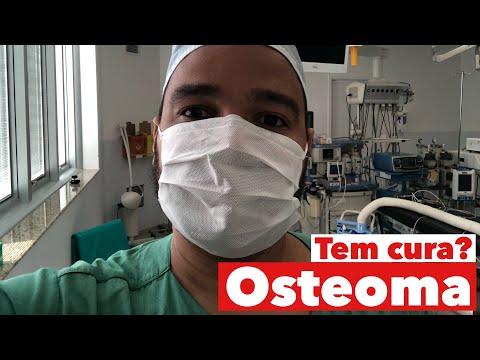 osteoma:-tem-cura?