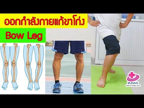 ออกกำลังกายลดอาการเข่าโก่ง ขาโก่ง (Bow Leg)