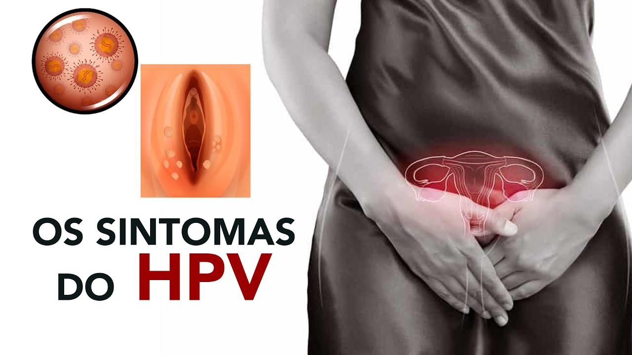 hpv en el ano sintomas)