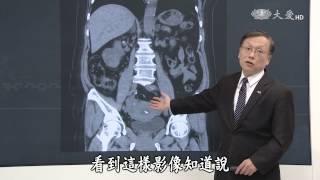 【大愛醫生館】20170427 - 光照腎癌