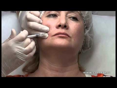 Как поднять уголки губ филлером, ботоксом и упражнениями