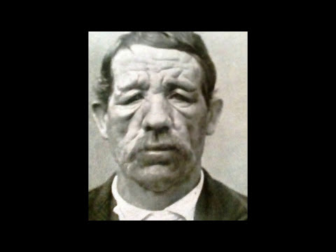 Horrifying old images showing the devastation of syphilis and Lupus and other disease  condtions .