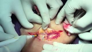 Submandibular gland excision - Dr. Satish Jain - www.skullbase360.in