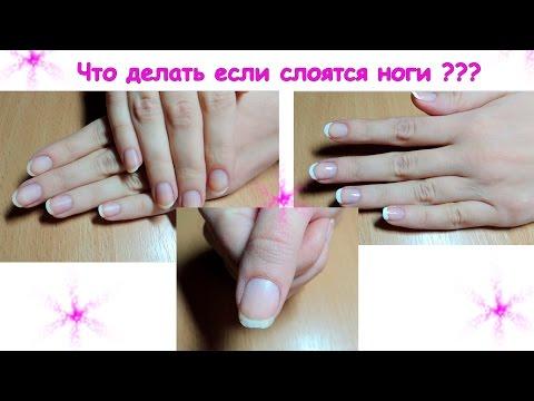 Как ухаживать за ногтями слоящимися