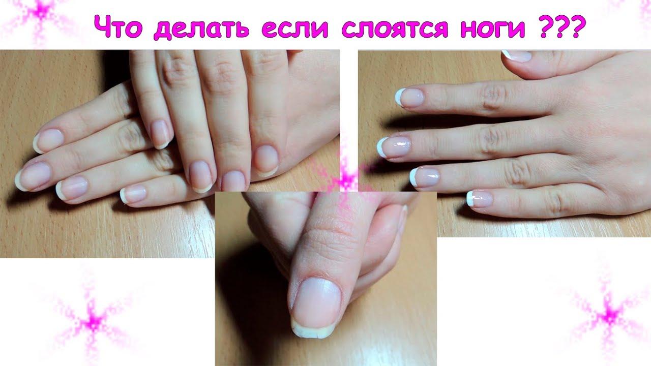 Ужасные ногти что делать фото