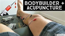 BODYBUILDER GETS ACUPUNCTURE!! - Takeaways and Impressions - Summit Acupuncture Philly
