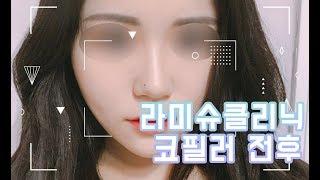 [리얼 후기] 라미슈 클리닉 닥터윤 코필러 전후