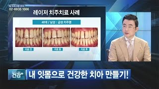 "SBS 건강플러스 ""내 잇몸으로 건강한 치아 만들기!"""