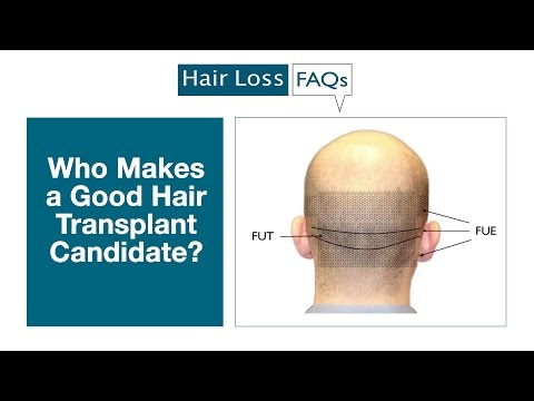 Who Makes a Good Hair Transplant Candidate?