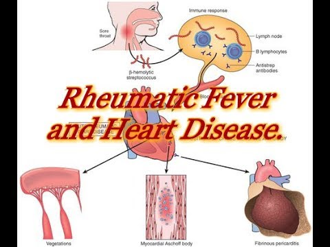 Rheumatic Fever Treatment