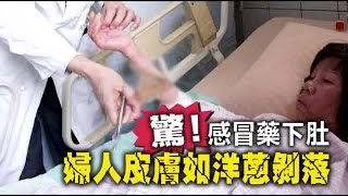 驚!感冒藥下肚 婦人皮膚如洋蔥剝落 | 台灣蘋果日報