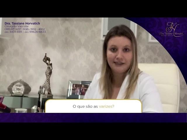 VARIZES - O QUE SÃO, COMO SURGEM E COMO TRATAR? - Dra Tassiane Horvatich