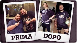 PRIMA E DOPO - L'INTERVENTO MIO E DI CICCIOGAMER89 [Sleeve Gastrectomy]