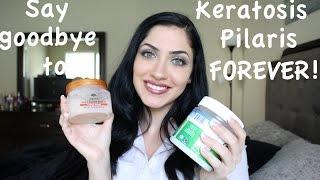 Treatment for Keratosis Pilaris: bumps on body & dry skin Part I⎢Assyrian Beauty
