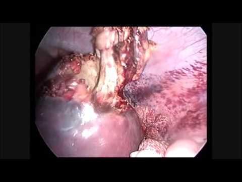 Laparoscopic cystectomy for splenic hydatid cyst - Pediatric Surgery