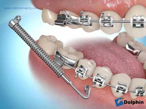Types Of Appliances Orthodontist Monroe Wa Jones Family