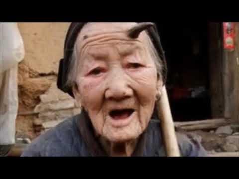 Woman Has Horn Growing Out Of Her Head  Liang Xiuzhen 'Unicorn woman'
