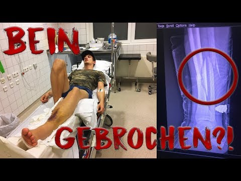 Splitterbruch im Bein? | Wielange falle ich aus?