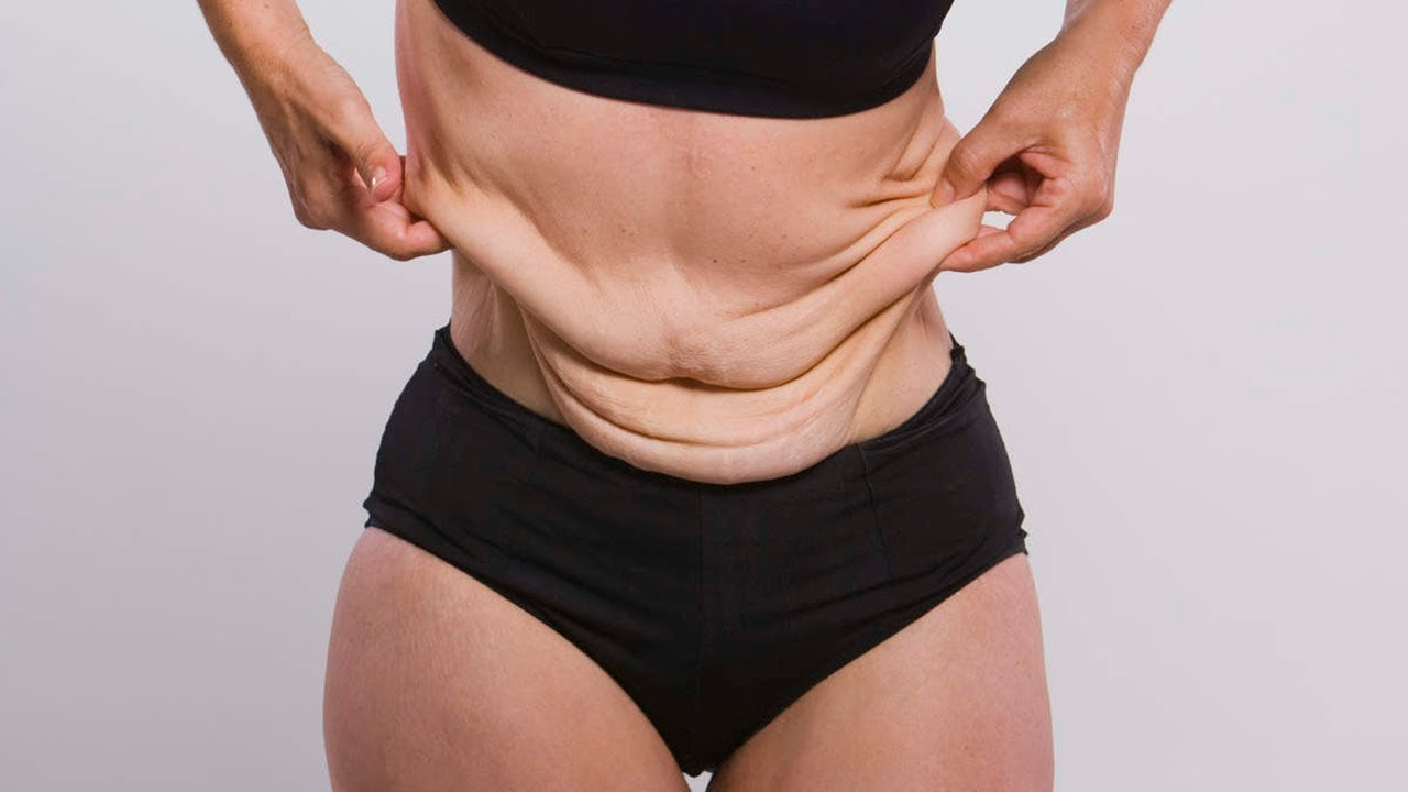 отвисла кожа после похудения
