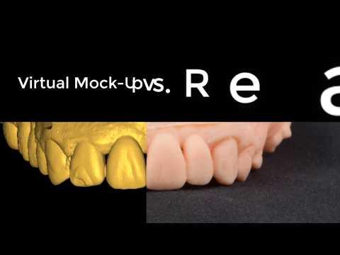 Download Mock Up Design In Exocad MP3, MKV, MP4 - Youtube to MP3