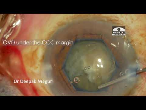 Capsule Tension Ring (CTR)  - Part 2- Implantation technique, tips & tricks- Dr Deepak Megur