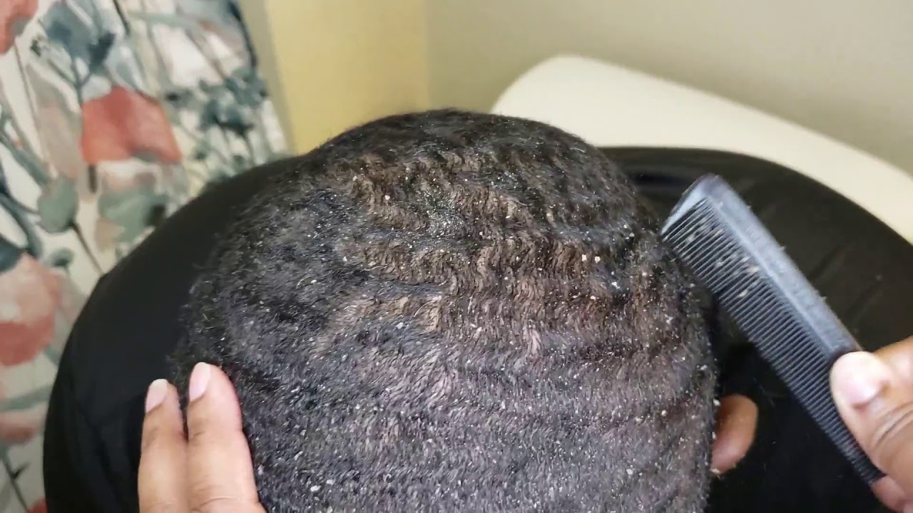 itchy scalp after haircut