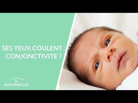 Ses Yeux Coulent : Conjonctivite ?  - La Maison Des Maternelles #LMDM