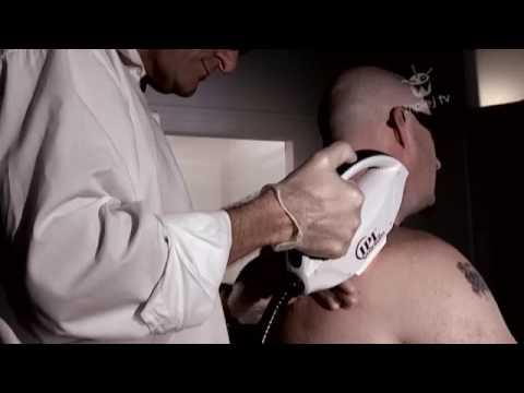 triple j Hack TV Laser Hair Removal